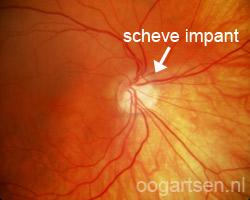 tilted disk (scheve implant oogzenuw)