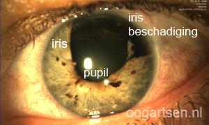 beschadiging iris, regenboogvlies